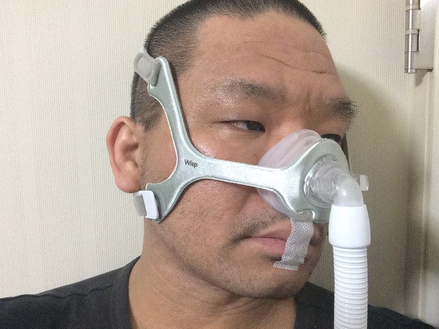 CPAPマスク/睡眠時無呼吸症候群の検査結果とその後